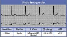 Sinus Bradycardia Heart Rate Rhythm P Wave PR Interval QRS (in seconds) (in seconds) <