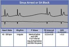Sinus Arrest or SA Block Heart Rate Rhythm P Wave PR Interval QRS (in seconds)