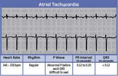 Atrial Tachycardia Heart Rate Rhythm P Wave PR Interval QRS (in seconds) (in seconds) 140