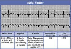 Atrial Flutter Heart Rate Rhythm P Wave PR Interval QRS (in seconds) (in seconds) A: