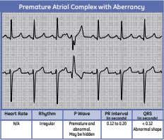 Premature Atrial Complex with Aberrancy Heart Rate Rhythm P Wave PR Interval QRS (in seconds)