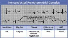 Nonconducted Premature Atrial Complex P P Wave Wave is is buried buried in in the