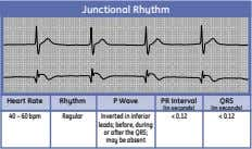 Junctional Rhythm Heart Rate Rhythm P Wave PR Interval QRS (in seconds) (in seconds) 40