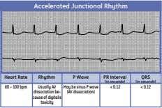 Accelerated Junctional Rhythm Heart Rate Rhythm P Wave PR Interval QRS (in seconds) (in seconds)