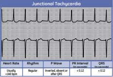 Junctional Tachycardia Heart Rate Rhythm P Wave PR Interval QRS (in seconds) (in seconds) Usually