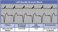 Left Bundle Branch Block P Wave PR Interval QRS Characteristics (in seconds) (in seconds) Before
