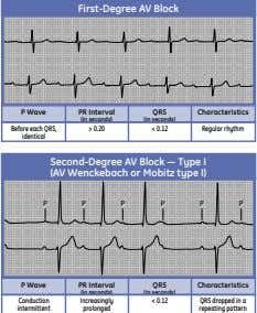 First-Degree AV Block P Wave PR Interval QRS Characteristics (in seconds) (in seconds) Before each