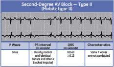 Second-Degree AV Block — Type II (Mobitz type II) P Wave PR Interval QRS Characteristics