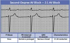 Second-Degree AV Block — 2:1 AV Block P Wave PR Interval QRS Characteristics (in seconds)