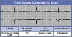 Third-Degree (Complete) AV Block P Wave PR Interval QRS Characteristics (in seconds) (in seconds) Normal