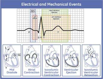 Electrical and Mechanical Events Mid Atrial Isovolumic Ventricular Isovolumic Diastole Contraction Ventricular