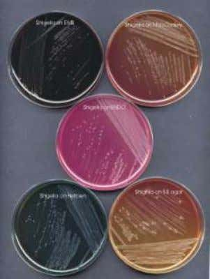 http://www.bvsops.org.uy/pdf/shigella.pdf http://www.wrongdiagnosis.com/s/shigella_dysenteriae_infection/tests.ht m