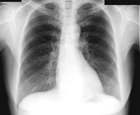 greater than 150 ms, which had been described previously. FIGURE 1-2 Chest radiograph at admission. CHEST