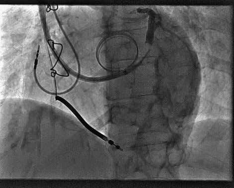 vein for a coronary sinus lead was a lateral FIGURE 3-4 FIGURE 3-5 F I G