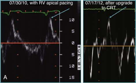 07/30/10, with RV apical pacing 07/17/12, after upgrade to CRT A