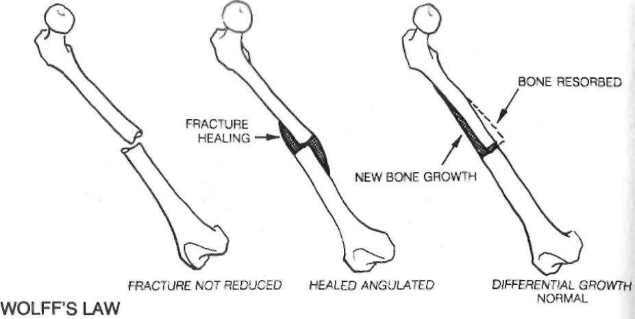 122 The Body Electric Wolffs-law reorganization occurs because something stimulates the periosteum to grow new bone