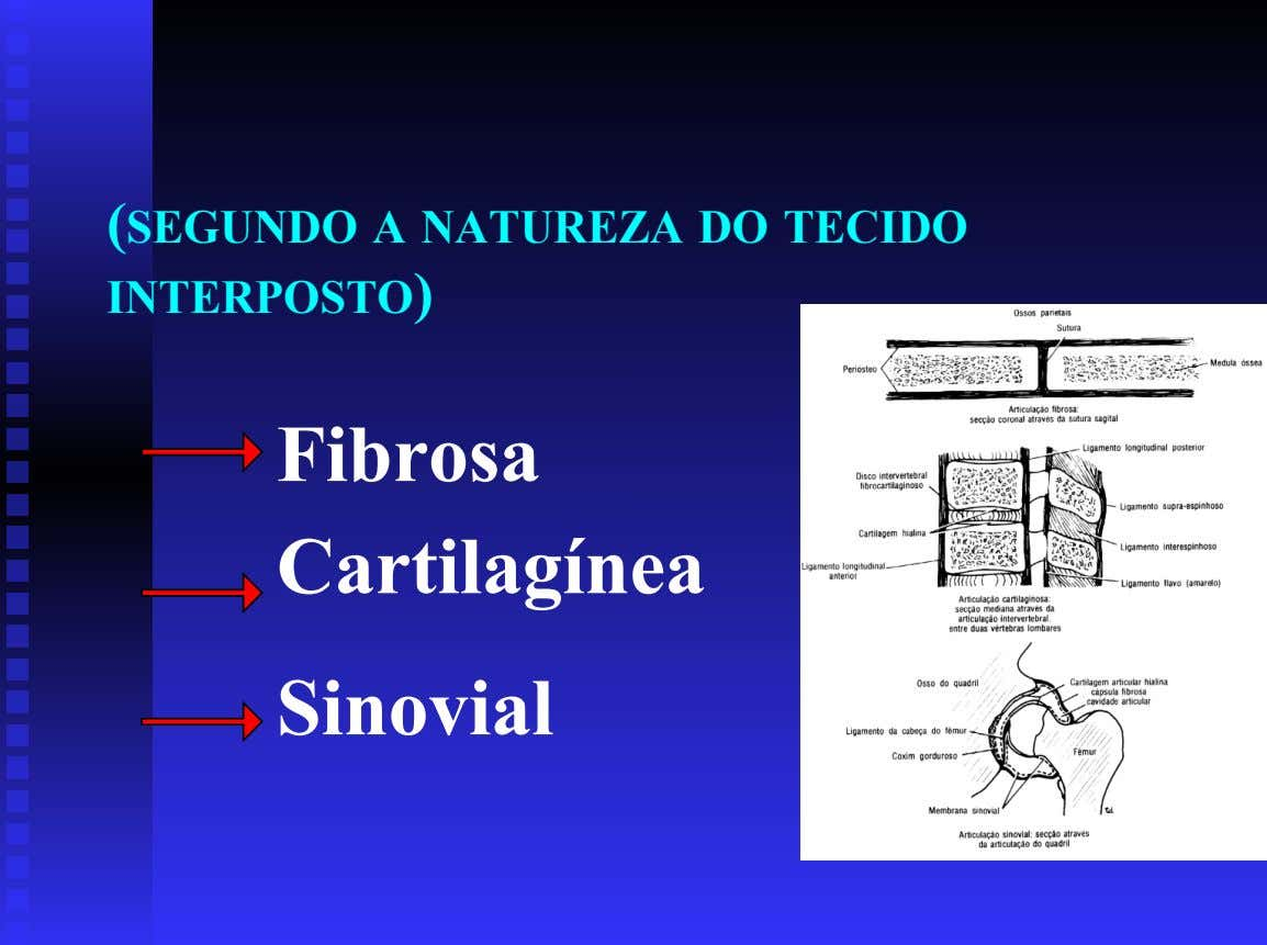 (SEGUNDO A NATUREZA DO TECIDO INTERPOSTO) Fibrosa Cartilagínea Sinovial