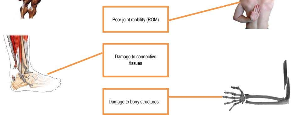 Poor joint mobility (ROM) Damage to connective tissues Damage to bony structures