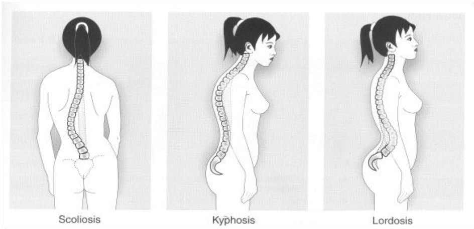 and spinal health by making a few lifestyle adjustments. Spinal posture Description Scoliosis Refers to