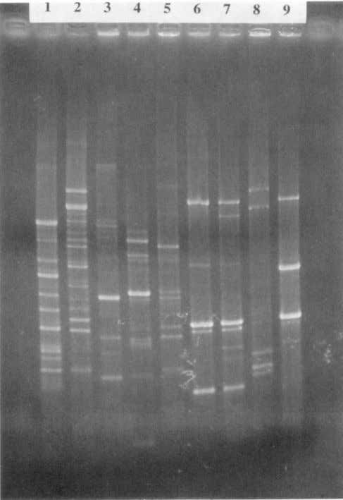 assimilate L-malate or produce acid from galactose. Strains FIG. 3. BOX-PCR fingerprints of F199T (lane l),