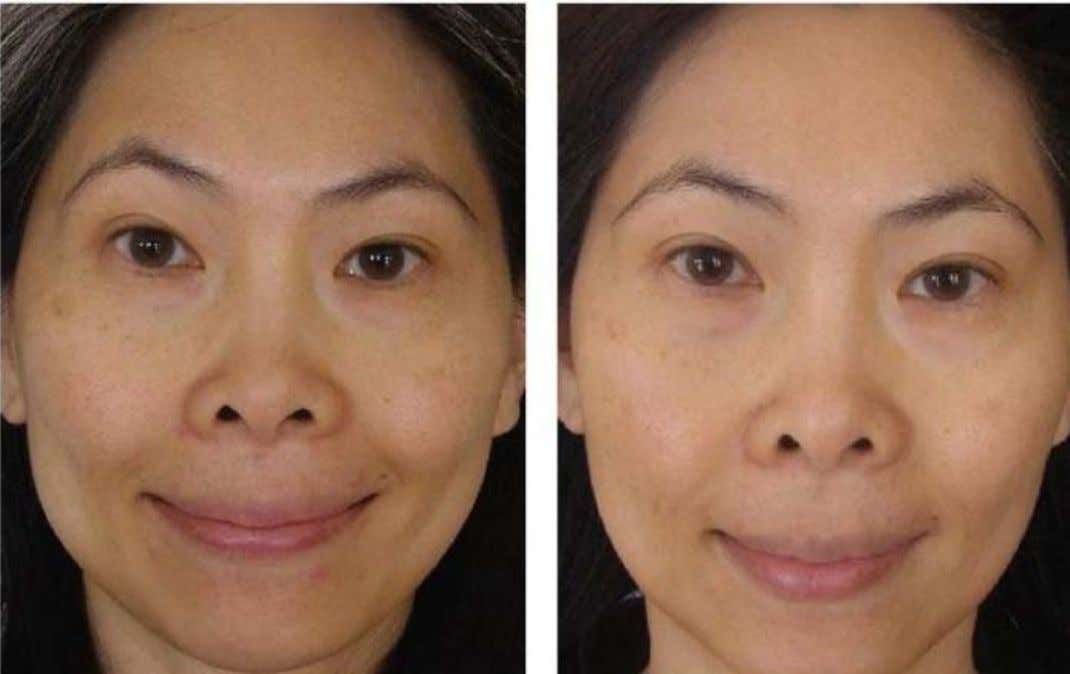 Cherie's results of 90 days usage of ageLOC Transformation. * These are not clinical photographs.