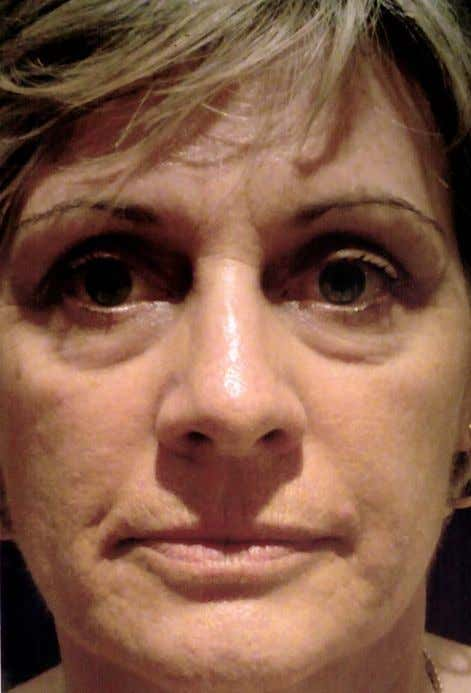 Sally Howard – after 3 months * These are not clinical photographs. These photos were