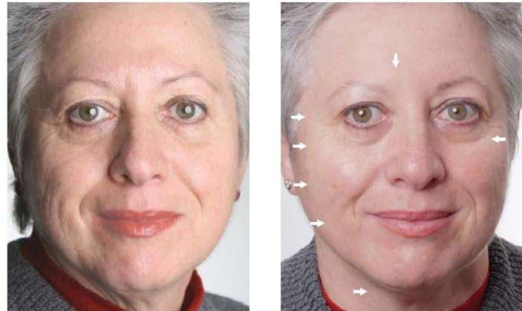 Martine's results after 12mths usage of Galvanic Spa, Tru Face Line Corrector + 6 weeks