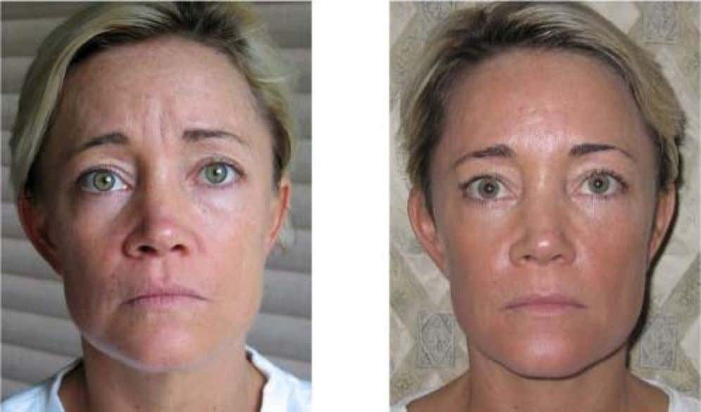 Traci Schumacher – twice per week for 90 days. * These are not clinical photographs.