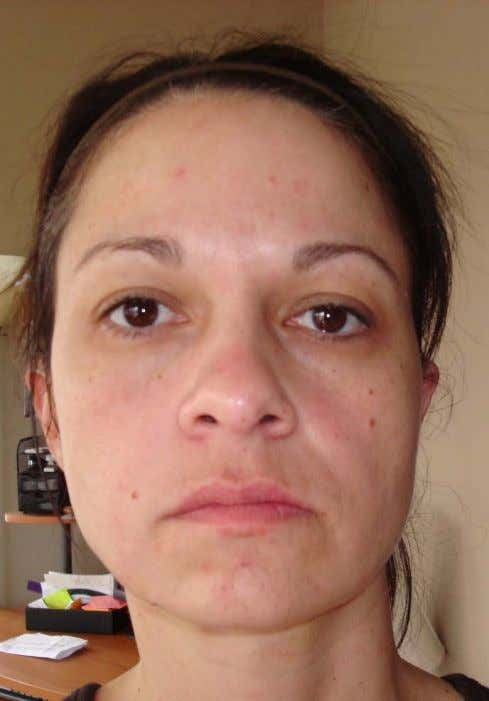 Results after 1 treatment on ½ face. * These are not clinical photographs. These photos were