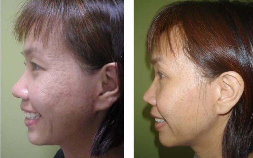 Geraldine – after 1 month. * These are not clinical photographs. These photos were taken