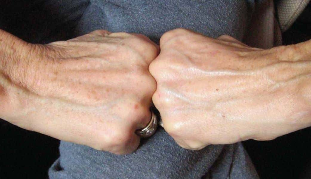 Christine's hand after 8 days usage ageLOC's Future Serum. * These are not clinical photographs.
