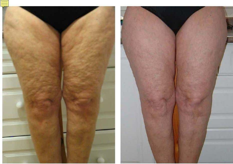 Cellulite reduced dramatically after 2 months After 2 Months * These are not clinical photographs.