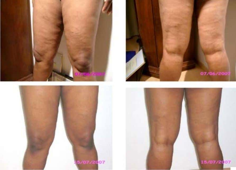 Cellulite reduced dramatically after 5 weeks * These are not clinical photographs. These photos were