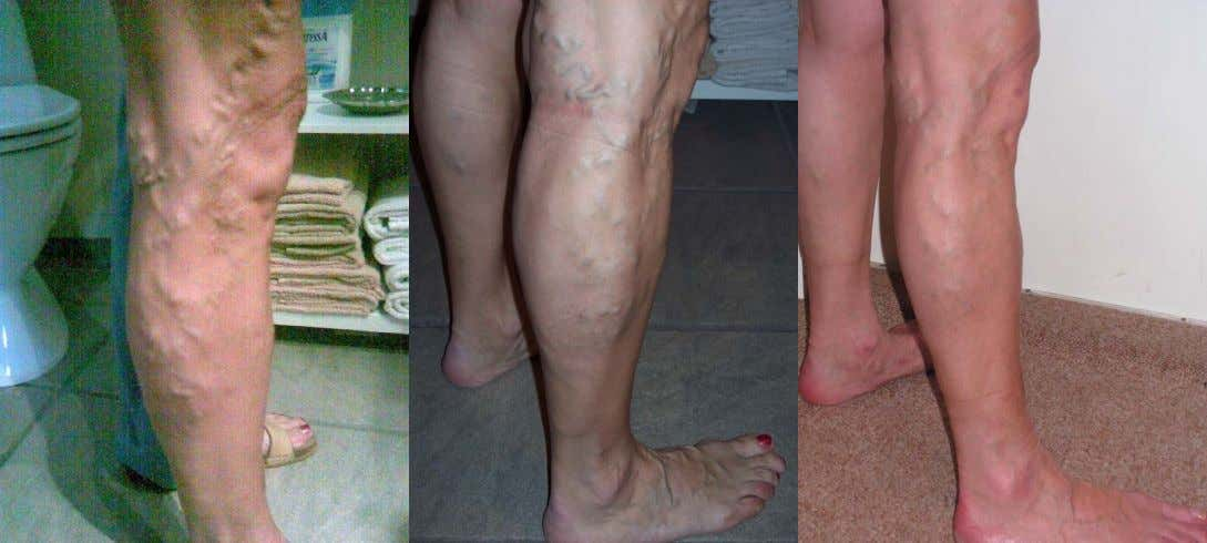 This 60 year old woman suffered with varicose veins for 35 years (photo 1), she