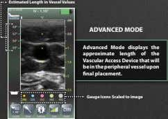 Estimated Length in Vessel Values ADVANCED MODE Advanced Mode displays the approximate length of the