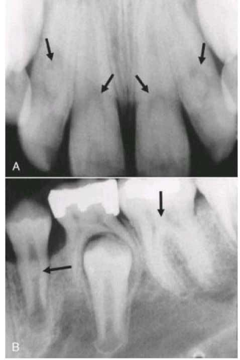 stones (arrows) in the pulp chamber and root canals of the anterior (A) and posterior (B)