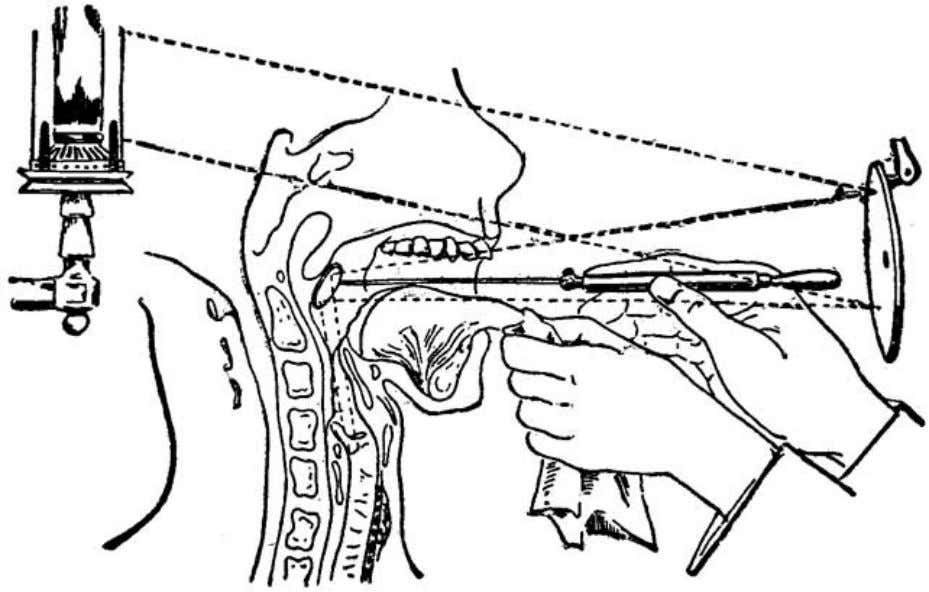 knowledge of the action of the larynx in voice-production. Fig. 38 (Bosworth). Intended to illustrate the