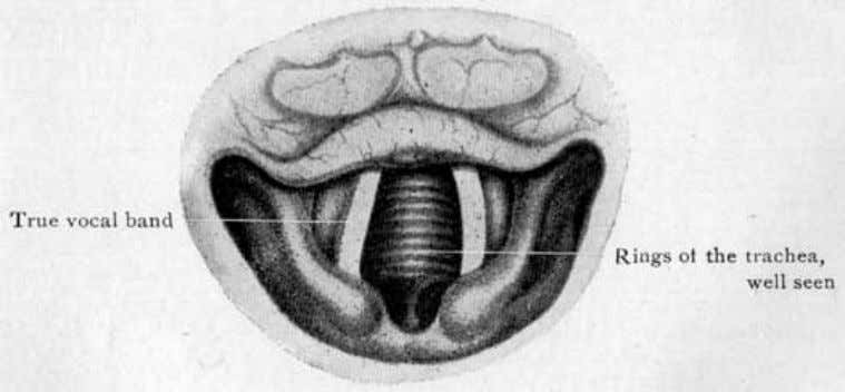 illustrations the bands are in the inspiration position. Fig. 41 (Grünwald). Laryngoscopic picture of the female