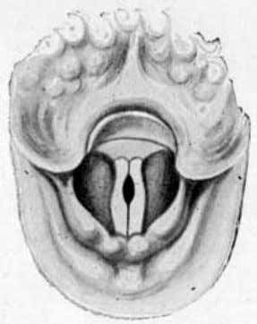 the largest larynx and the longest and heaviest vocal bands. Fig. 45. Represents what the author