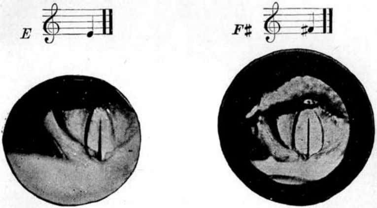 Voice Production in Singing and Speaking, by Wesley Mills. Fig. 51. A photographic representation of the