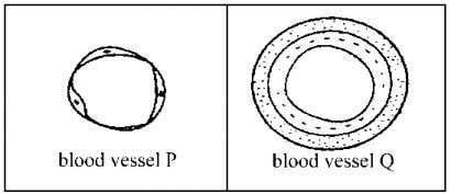 (i) Mark on Diagram 4.1 the flow of blood by using arrows below. Oxygenated blood ........................
