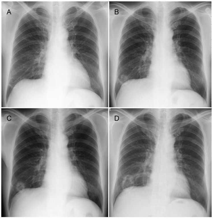 Journal of Cancer 2011, 2 504 Figure 1. Chest X-ray findings. A, B, C, and