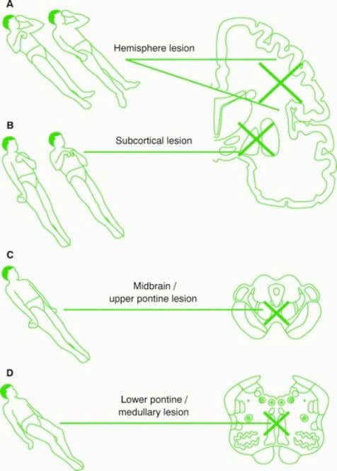 Motor response and Posture in coma Decerebrate rigidity bilateral upper and lower limb extensor posture, usually