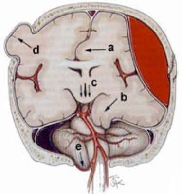 Brain herniation Friday, March 16, 2012 • Subfalcine (A) • Uncal (B) • Central (C) •