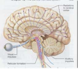 "hemisphere ""CPOMR"" can help us to localize the lesion • Conscious: drowsy, stupor, semi-coma, coma •"