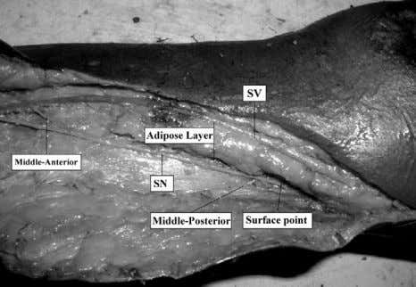 Ann Thorac Surg 2008;85:896 –900 Fig 1. The surface point of the saphenous nerve (SN) at