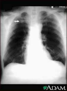 Tuberculosis, advanced - chest x-rays Lung cancer, frontal chest x-ray Pulmonary nodule - front view chest