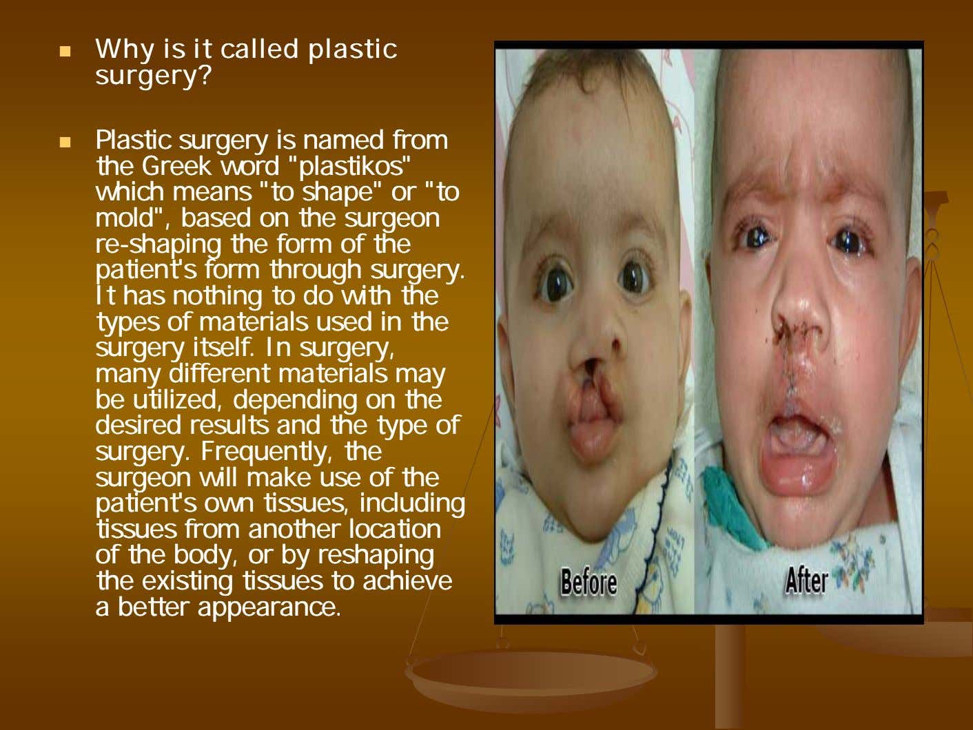 WhyWhy isis itit calledcalled plasticplastic surgery?surgery? PlasticPlastic surgerysurgery isis namednamed fromfrom