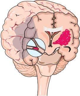 ISchemIc STroke the heart or an artery in the neck. The clot is carried by the