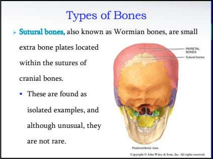 Types of Bones  Sutural bones, also known as Wormian bones, are small extra bone